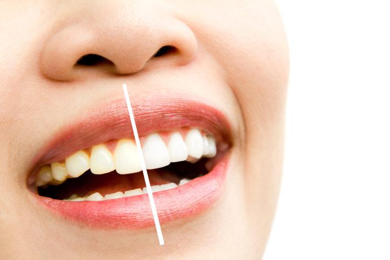 realiza tu blanqueamiento dental