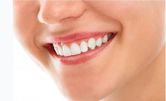 Carillas dentales: cómo conseguir la mejor sonrisa