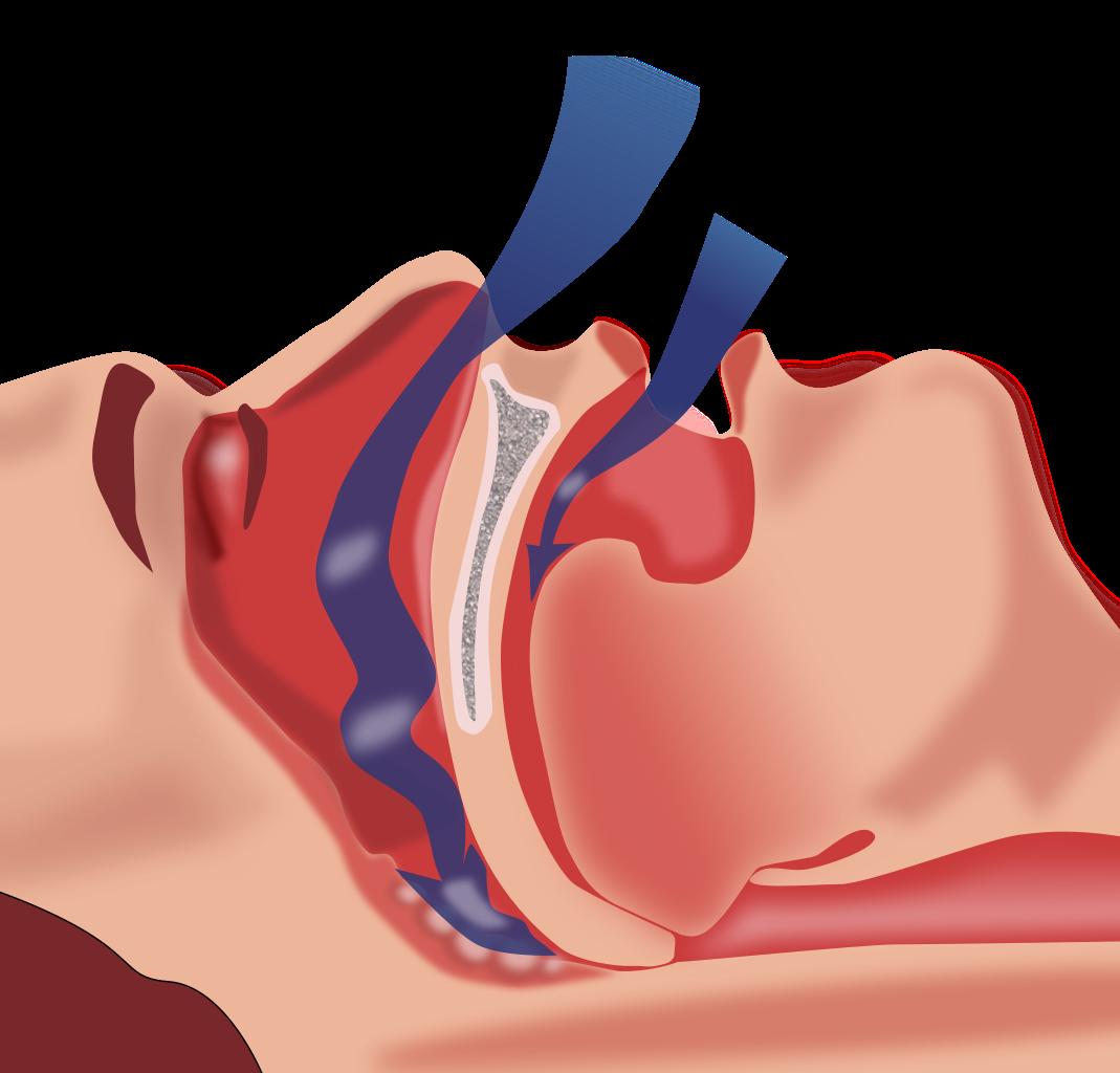 Apnea del sueño: qué es y cómo puede ayudarte tu dentista