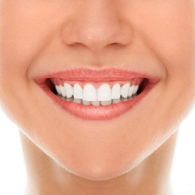 Qué es la gingivectomía y en qué casos se realiza