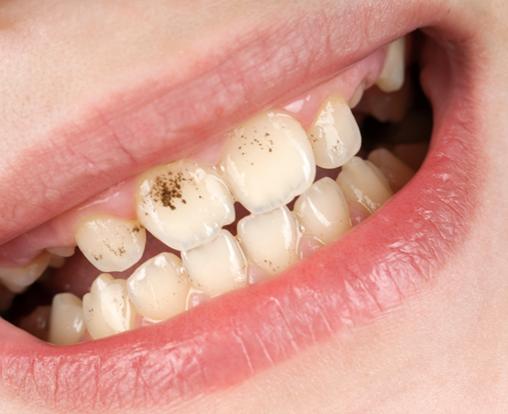 La periodontitis y la pérdida prematura de piezas dentales