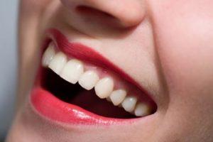 blanqueamiento dental valdemoro